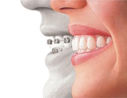 promenade-dental-mumbles-invisalign