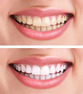 promenade-dental-mumbles-tooth-whitening