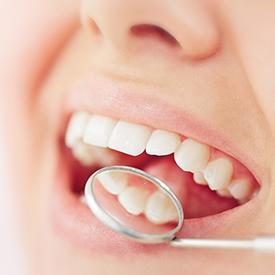 promenade-dental-mumbles-whitefilling